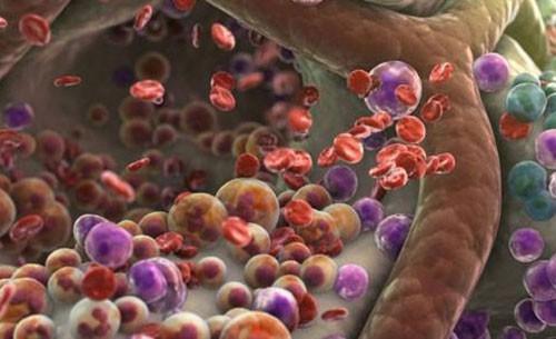 Tumori rimossi in un secondo grazie a un fascio di elettroni