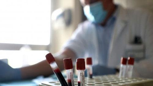 Coronavirus. Oggi più di 50 casi in Campania